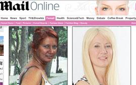 Antes (esq.) e depois de Janet, que gastou cerca de R$ 32 mil em cirurgias plásticas para ficar parecida com a filha. (Foto: Reprodução )